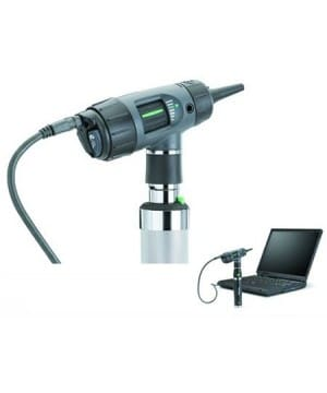 wideootoskop-digital-macroview-rekojesc-akumulatorowa